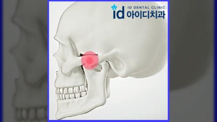 턱관절치료 비수술적인 방법 원하신다면?