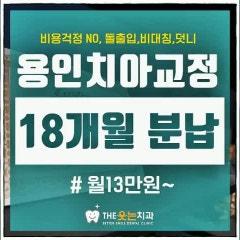 용인교정치과, 18개월 분납으로 부담감없이!