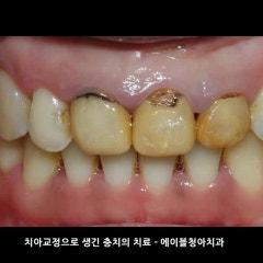 수원치과 치아교정 후 치아미백