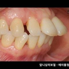치아성형전후 모든 치아를 예쁘게