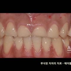 치아부식의 원인과 부식된 치아의 치료