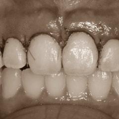잇몸성형 치아손상 없이 치아가 예뻐지는 방법