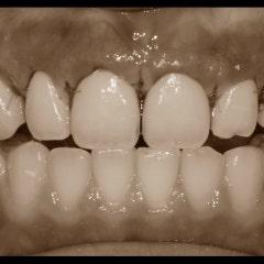 앞니성형 치아고민을 해결합니다.