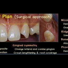 치아성형과정 간단한 줄 아시나요