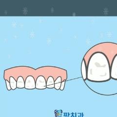 치아 하얀얼룩 문제점과 예방은?