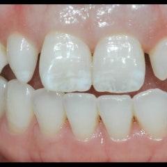 치아얼룩 쐐기모양 치아의 라미네이트 치료