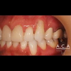 잇몸이 부족한 치아를 건강하게 만드는 잇몸이식