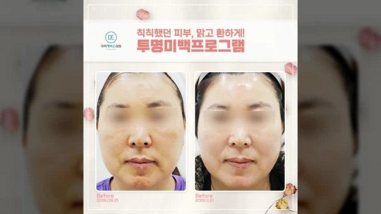 어둡고 그늘진 피부. 구월동근처에 위치해있는 피부과에서 투명미백프로그램으로 개선해요