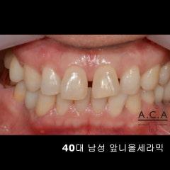 40대 남자 치아성형 앞니올세라믹