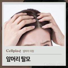앞머리 탈모 증상이 보이면 줄기세포시술로