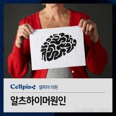 알츠하이머원인 줄기세포가 예방법이 될 수 있다?