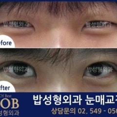 눈매교정수술 정확한 진단을 통한 술기의 선택을