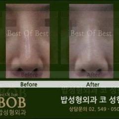 휘어진코교정 코의 모양과 기능을 고려한 교정을