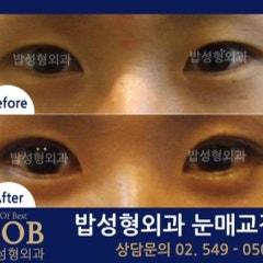 수험생눈매교정수술 본인의 눈 상태 진단이 먼저!