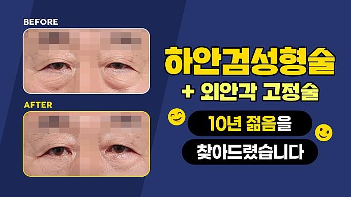 하안검성형술 사례소개